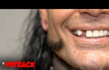 Jeff Hardy breaks tooth at WWE Payback, Receives medical attention