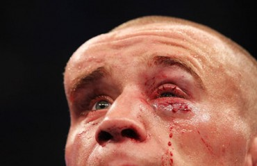 5 Most Gruesome Injuries In the MMA History